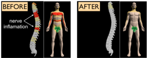 hrbtenica-vnetje